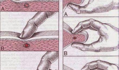 Terapia punktów spustowych (trigger points)
